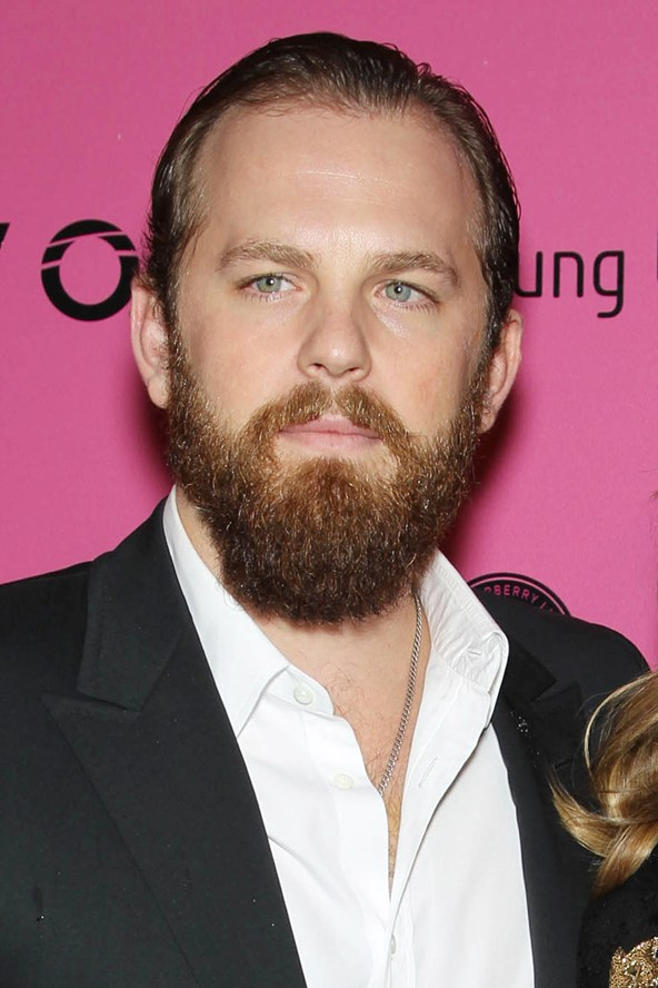 kings of leon caleb followill balding