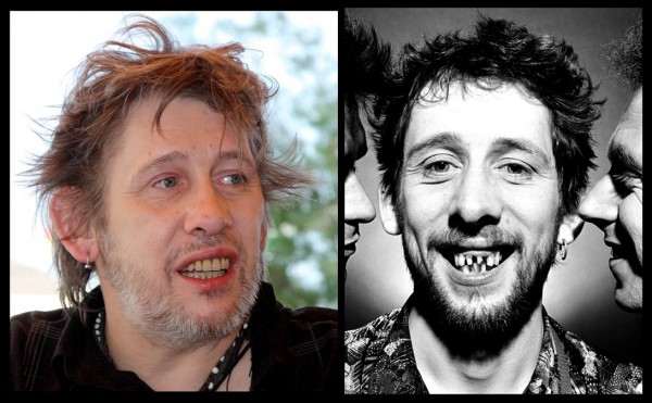 the pogues shane macgowan bad teeth then and now